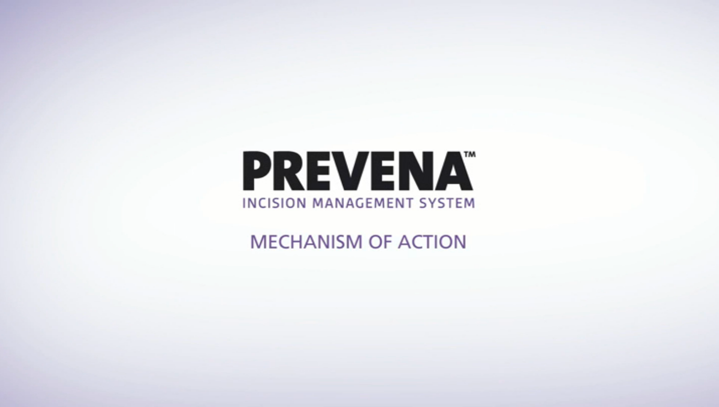 PREVENA Therapy Mechanisms of Action
